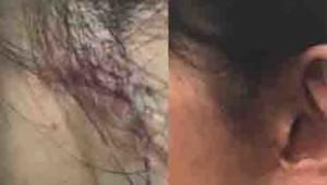 ザクロペインター 皮膚改善